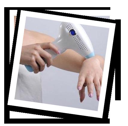 Forever Skin IPL DEESS IPL szőrtelenítő gépek kipróbálás